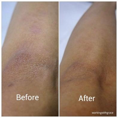 exfoliation - elbow
