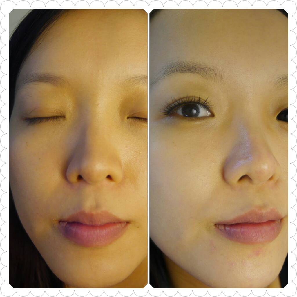 How To Get Rid Of Redness Around Nose Naturally