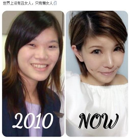 plastic surgery blogger