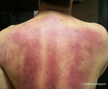 guasha massage tanjong pagar